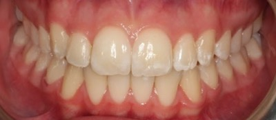 Vorher-Nacher Zahnkorrektur - nachher