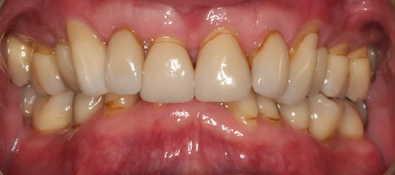 Vorher-Nacher Zahnkorrektur - vorher