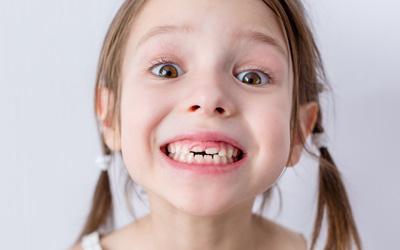 Leistungen KFO Mädchen Zahn