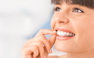 Kieferorthopädie Smile-first Frau Invisalign transparente Zahnschiene