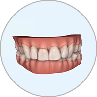 3D Simulation in der Kieferorthoädischen Praxis Smile-first in Bad Aibling