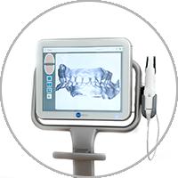 ITero Zahnabdruck in der Kieferorthoädischen Praxis Smile-first in Bad Aibling