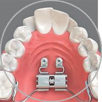 Miniimplantate in der Kieferorthoädischen Praxis Smile-first in Bad Aibling