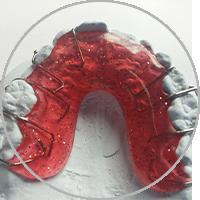Herausnehmbare Zahnspangen in der Kieferorthoädischen Praxis Smile-first in Bad Aibling