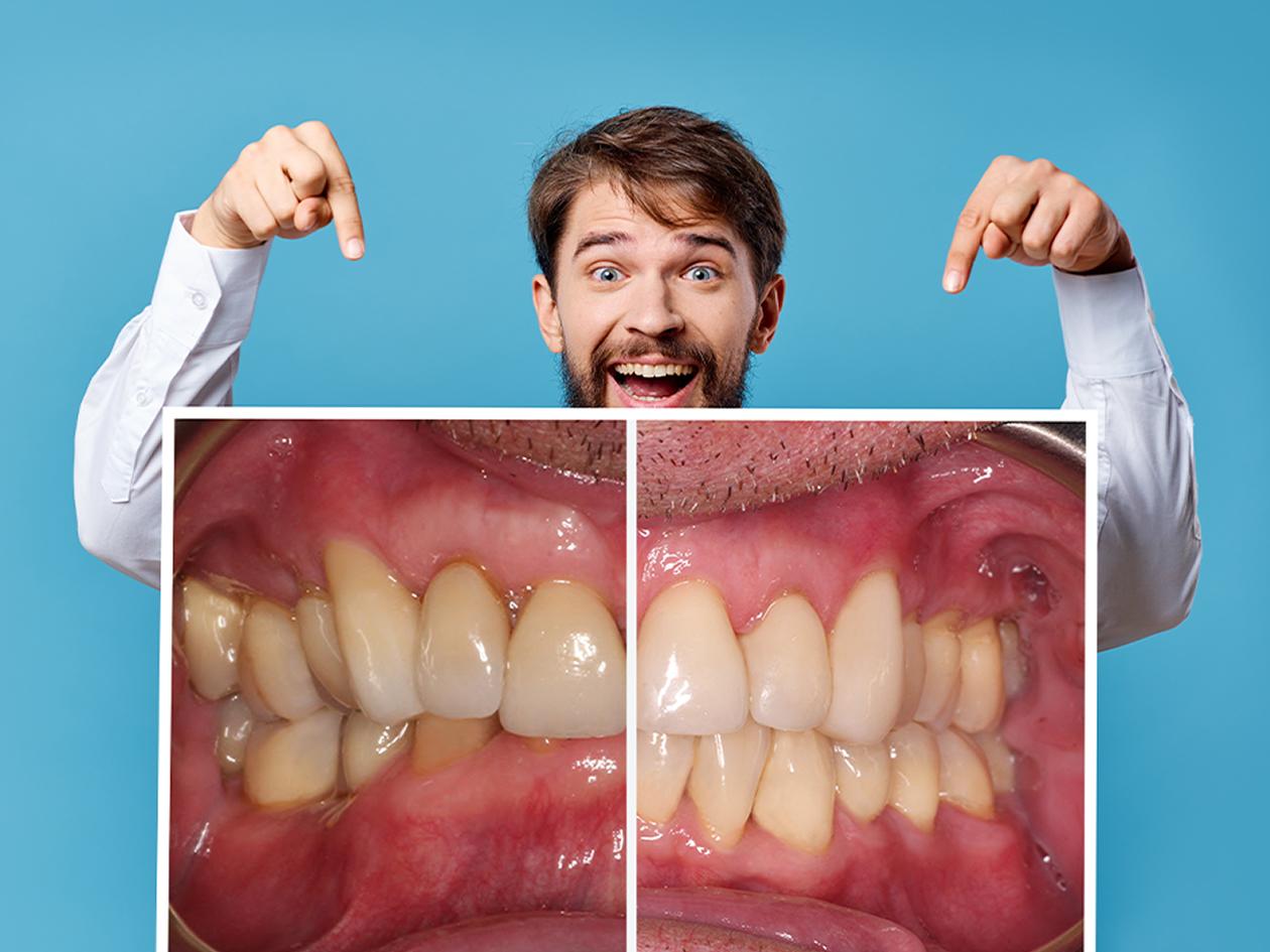 Invisalign Full Behandlung in der Kieferorthopädischen Praxis Smile-first in Bad Aibling