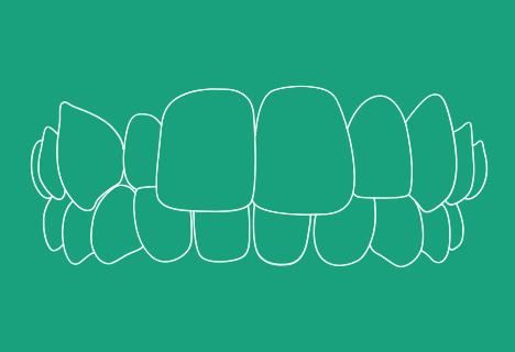 Zahnfehlstellung: Kreuzbiss - Kieferorthopädische Praxis Smile-first in Bad Aibling