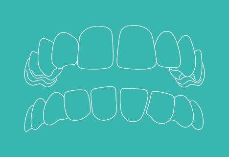 Zahnfehlstellung: Lückenstand - Kieferorthopädische Praxis Smile-first in Bad Aibling
