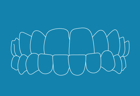 Zahnfehlstellung: Progenie - Kieferorthopädische Praxis Smile-first in Bad Aibling