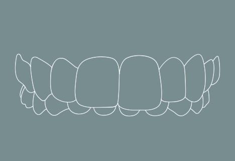 Zahnfehlstellung: Tiefbiss - Kieferorthopädische Praxis Smile-first in Bad Aibling