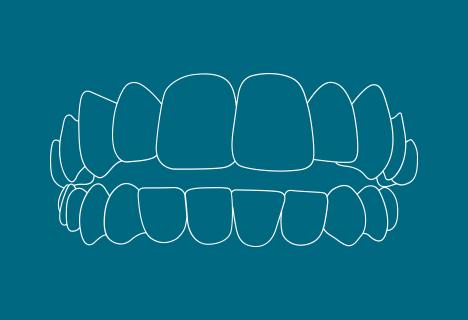 Zahnfehlstellung: Offener Biss - Kieferorthopädische Praxis Smile-first in Bad Aibling